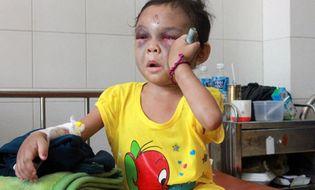 Xã hội - Bé 4 tuổi bị đánh dã man: Có tiền, tình thương lại ngập tràn (?!)