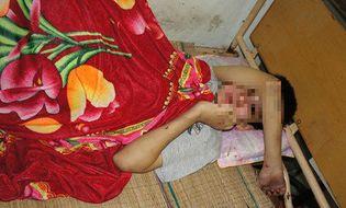 Sự kiện hàng ngày - Giải cứu bé trai tàn tật bị bắt cóc, đốt cháy bộ phận sinh dục