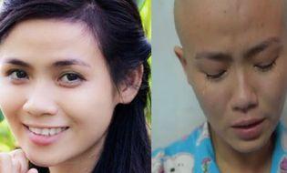 Cộng đồng mạng - Nghẹn ngào với chia sẻ của cô gái trẻ xinh đẹp mắc bệnh máu trắng
