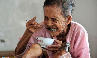 Xã hội - Nỗi khổ của cụ bà 97 tuổi mọc sừng 20 cm