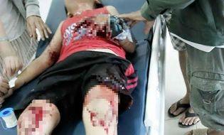 Miền Trung - Lựu đạn nhựa phát nổ, 2 cháu bé nhập viện cấp cứu