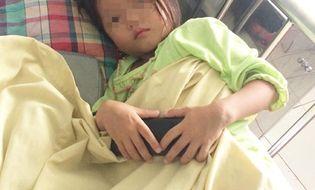Sự kiện hàng ngày - Ăn thịt bò tái, bé gái 4 tuổi bị nhiễm sán lá gan