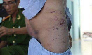 An ninh - Hình sự - Hai chú tiểu bị đánh dã man vì nghi ăn cắp tiền công đức