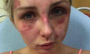 Gia đình - Tình yêu - Cô gái bị bạn trai hành hung vì phản đối hút thuốc