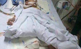 Hoàn cảnh - Xót xa hoàn cảnh của bé trai 5 tuổi phải cưa một chân sau tai nạn