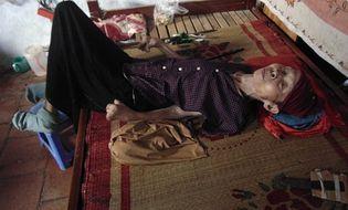 Hoàn cảnh - Câu chuyện về người phụ nữ bại liệt 42 năm và người con gái hiếu thảo