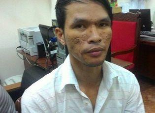 Lời khai lạnh lùng Nguyễn Thành Dũng, nghi can dí điện bé trai 2 tuổi