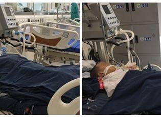 Y tế - Hai trẻ bị ong đốt đang nguy kịch