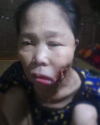 """Khuôn mặt bị """"đục khoét"""", người phụ nữ đau đớn - ảnh 1"""