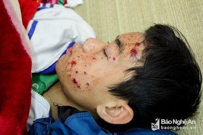 Điện thoại nổ khi đang sạc, nam sinh lớp 8 ở Nghệ An nhập viện - ảnh 1