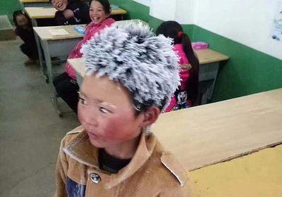 Bé trai tóc đóng băng ở Trung Quốc được hỗ trợ 2,6 triệu USD - ảnh 1