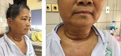 U tuyến giáp to, nguy cơ gây họa được bác sĩ phẫu thuật thành công - ảnh 1