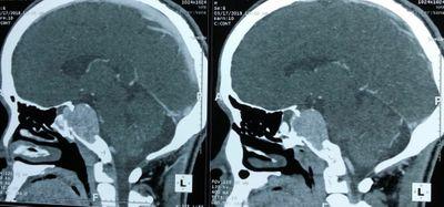 Quyết định sinh tử bóc khối u trong não - ảnh 1