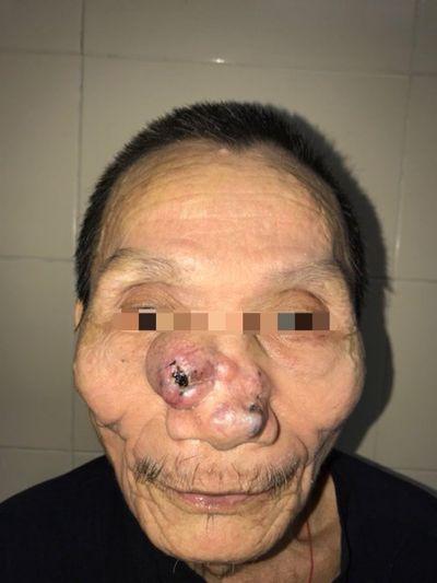 Khối u nguy hiểm trên mặt được bác sĩ phẫu thuật kịp thời - ảnh 1