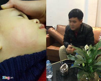 Bác sĩ tát đỏ mặt trẻ 22 tháng trong lúc chữa bệnh - ảnh 1