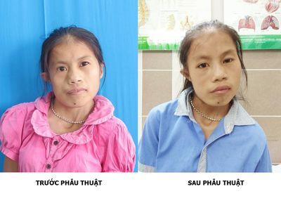 Phép màu xuất hiện sau 20 năm cuộc đời của cô gái trẻ Thái Nguyên - ảnh 1