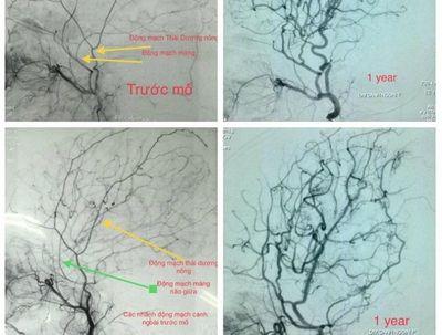 Trẻ bị đau đầu kéo dài có thể mắc bệnh Moyamoya - ảnh 1