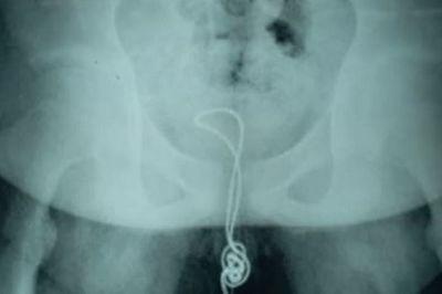 Nghịch dại, dây sạc điện thoại mắc kẹt trong vùng kín của cậu bé 13 tuổi - ảnh 1