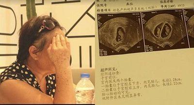 Người phụ nữ mang song thai ở tuổi 67, vẫn quyết sinh dù nguy hiểm đến tính mạng - ảnh 1