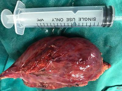 """Quảng Ninh: Phẫu thuật nội soi lồng ngực cắt bỏ khối u """"khổng lồ"""" - ảnh 1"""