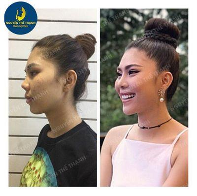 Gương mặt tỏa sáng hơn với ưu đãi 30% nhân dịp 8/3 tại thẩm mỹ viện bác sỹ Nguyễn Thế Thạnh - ảnh 1