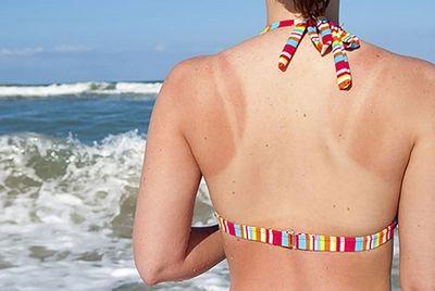 13 lợi ích tuyệt vời của quả vải đối với sức khỏe: Ngừa ung thư, điều chỉnh huyết áp - ảnh 1