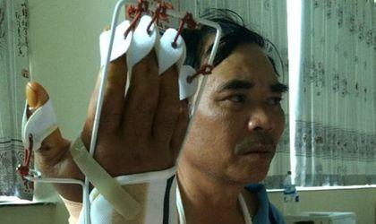 An ninh - Hình sự - Gia Lai: Bắt gỗ lậu, kiểm lâm bị côn đồ chém đứt gân tay