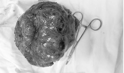 Tin tức - Sút cân, nôn ra máu mới biết mang khối u nặng 2kg trong dạ dày