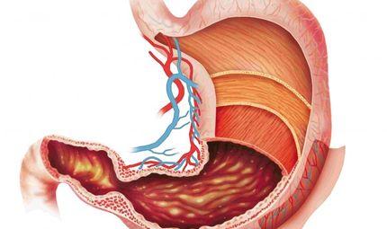 Y tế - Đau dạ dày cấp: Cách xử lý để không thành mãn tính