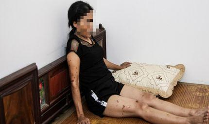 Quyền lợi tiêu dùng - Bình Phú - Hưng Yên: Manh mối nghi can từ mâu thuẫn cá nhân đến thuê người tạt axit để trả thù