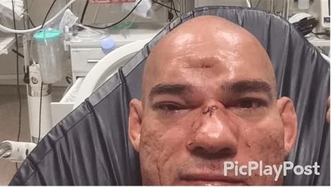 Võ sĩ MMA vỡ sọ sau khi dính cú lên gối tàn khốc của đối thủ - Ảnh 1