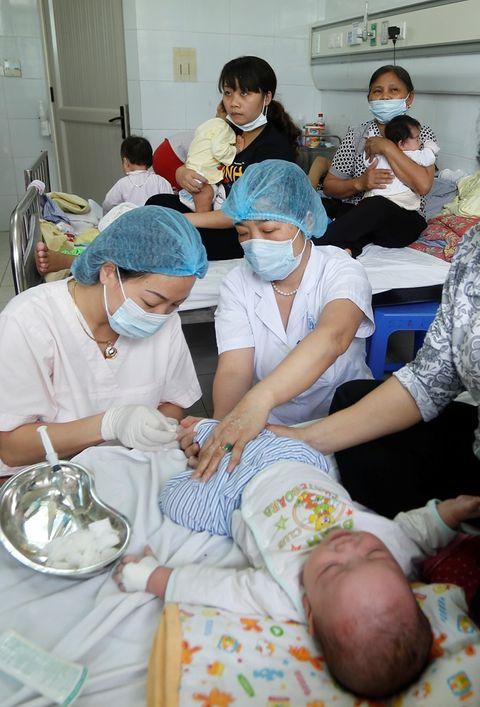 Dịch sởi nặng nhất trong hàng thập kỷ ở Việt Nam - Ảnh 5