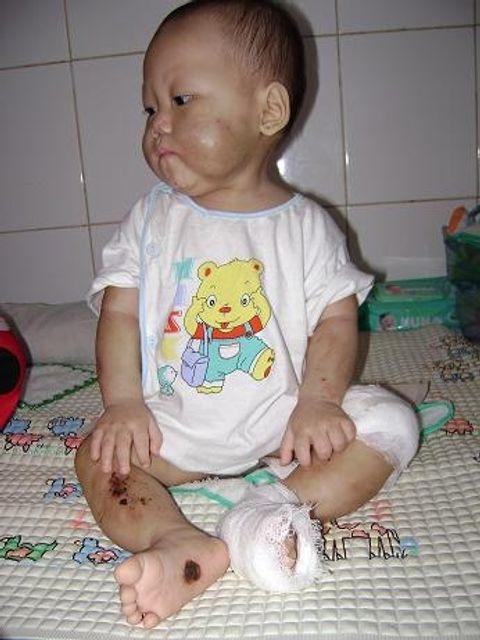 Những vụ bạo hành trẻ em kinh dị nhất Việt Nam - Ảnh 10