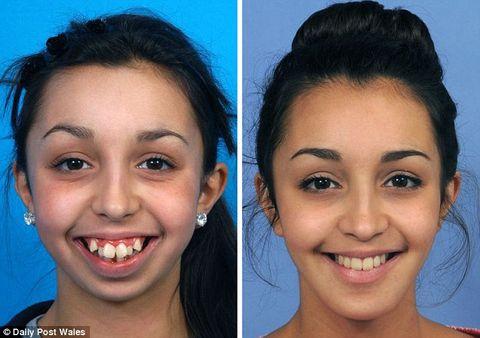 Bức ảnh chứng minh tầm quan trọng của răng miệng với sắc đẹp