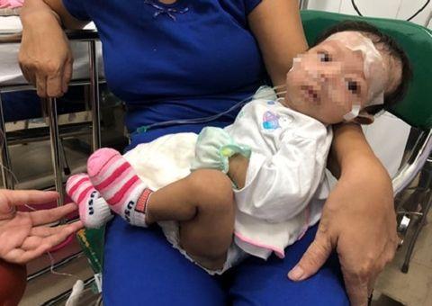 Tin tức - Cứu bé gái 2 tháng tuổi mắc bệnh hiếm gặp hình thành từ lúc bào thai