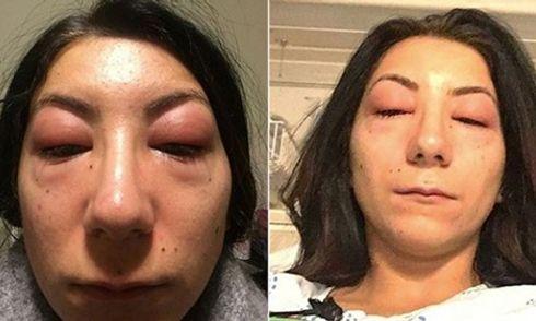Cô gái trẻ đau đớn không thể mở mắt sau khi nối mi giả
