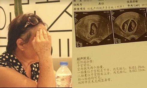 Người phụ nữ mang song thai ở tuổi 67, vẫn quyết sinh dù nguy hiểm đến tính mạng