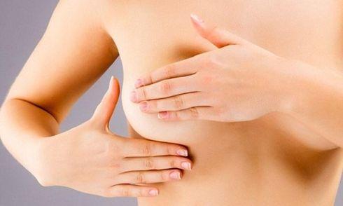 Ung thư vú giai đoạn 2: Đặc điểm và dấu hiệu của bệnh