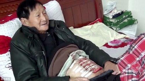 Phát hiện sỏi thận nặng gần 2kg trong cơ thể cụ ông 70 tuổi - Ảnh 3