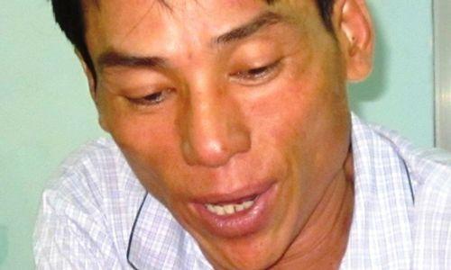 Sát hại người tình sau khi sử dụng ma túy chung - Ảnh 1