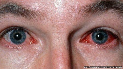 Bị ký sinh trùng ăn mòn giác mạc vì dùng kính áp tròng - Ảnh 1