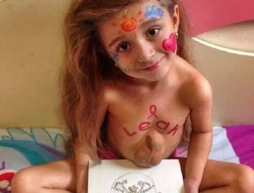 Kinh ngạc cô bé 5 tuổi có trái tim nằm ngoài lồng ngực - Ảnh 4