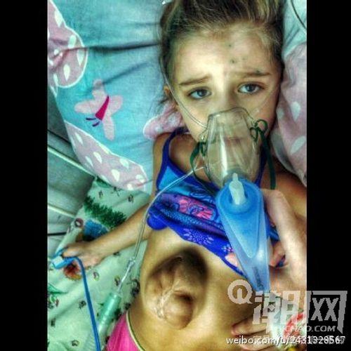 Kinh ngạc cô bé 5 tuổi có trái tim nằm ngoài lồng ngực - Ảnh 3