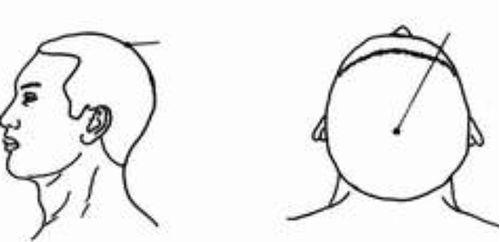 Ba cách bấm huyệt đơn giản đẩy lùi chứng đau đầu buồn ngủ ngày hè - Ảnh 1