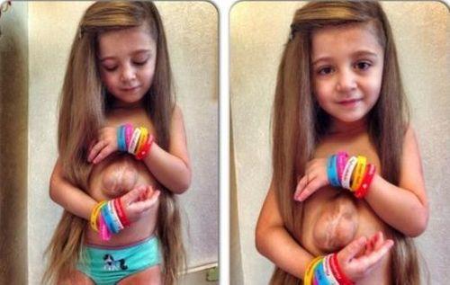 Kinh ngạc cô bé 5 tuổi có trái tim nằm ngoài lồng ngực - Ảnh 1