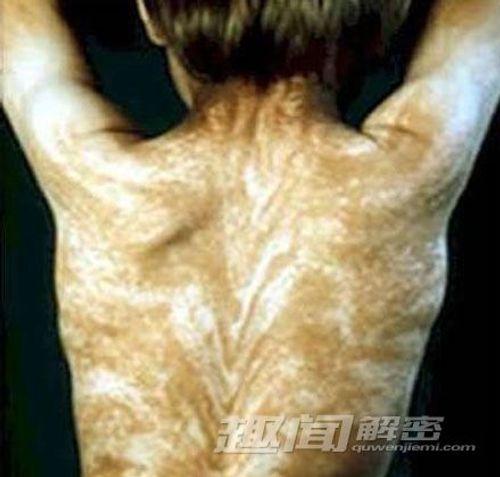 10 căn bệnh đáng sợ trong lịch sử loài người - Ảnh 4