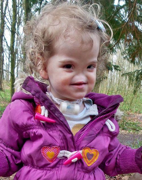 Kỳ diệu ca phẫu thuật 3D cho cô bé sinh ra không có mũi  - Ảnh 1