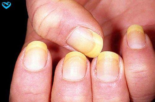 Đoán tình hình sức khỏe của bạn qua móng tay - Ảnh 1