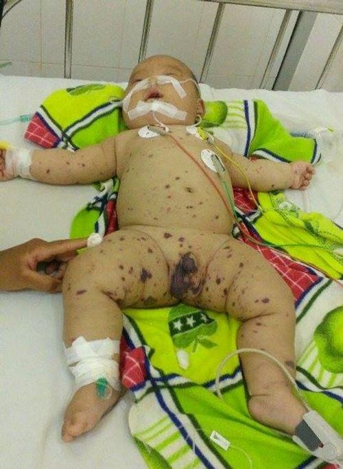 Cháu bé 5 tháng tuổi nghi nhiễm não mô cầu - Ảnh 1
