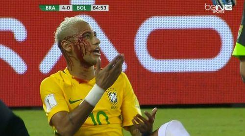 """Sau tình huống này, Neymar sẽ """"cạch"""" xâu kim đến già - Ảnh 1"""